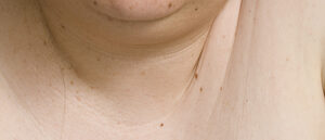 Cubicle2 (2010-2011) - neck and chin